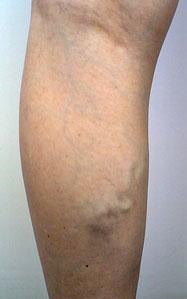 Женщина натирала уксусом ноги с выступающими венами на ночь каждый день в течение