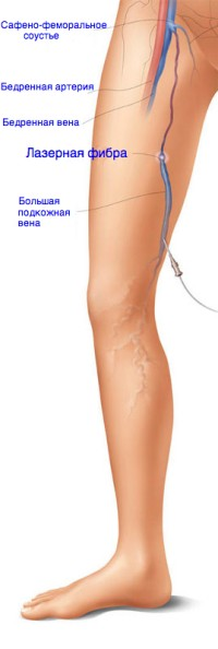 Варикоз на ногах начальная стадия