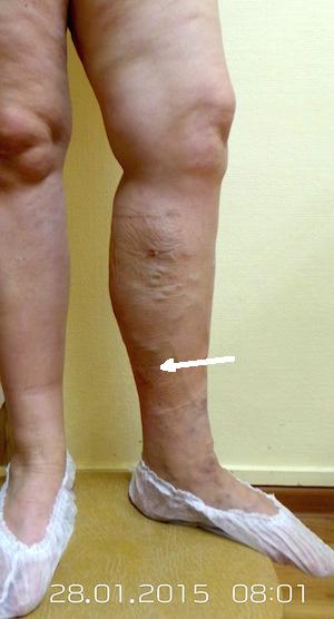 Как распознать варикоз на ногах на ранних сроках