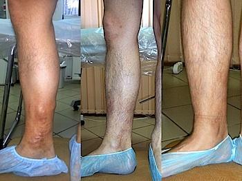 Лазеротерапия при варикозе нижних конечностей