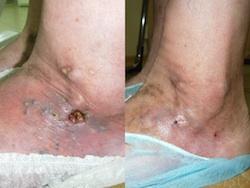 Показания к лазерному лечению варикоза