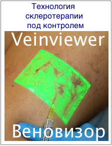 Мази с гепарином при варикозе