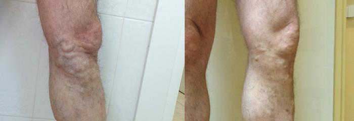 Гиперпигментация кожи при варикозе лечение