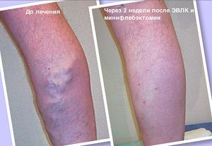 Воспаление труб лечение народными средствами