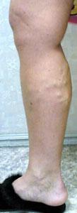 Консервативное лечение при варикозном расширении вен нижних конечностей