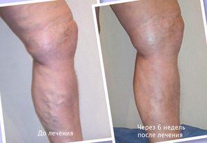 Самые читаемые статьи: Лечение варикоза в новокузнецке отзывы